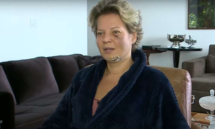 DEPUTADA SOFRE 'GRAVE ATENTADO' EM SEU APARTAMENTO EM BRASILIA